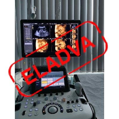 Használt UGEO H60 típusú 2D/3D/4D ultrahang készülék